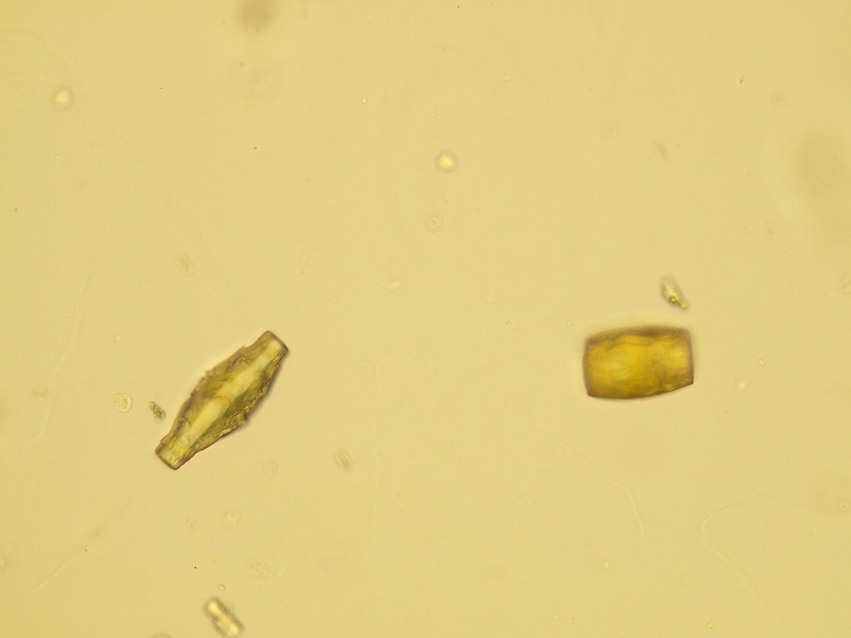 Uric acid crystal in urine image